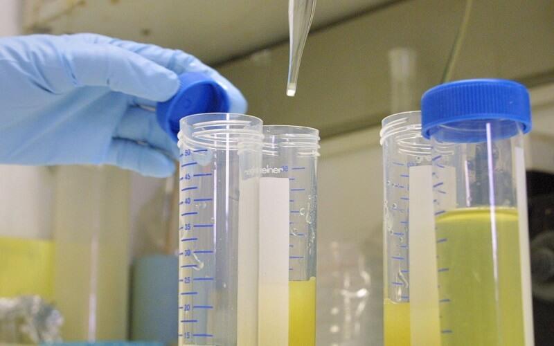 Có bao nhiêu phương pháp xét nghiệm nước tiểu ở Đà Lạt?