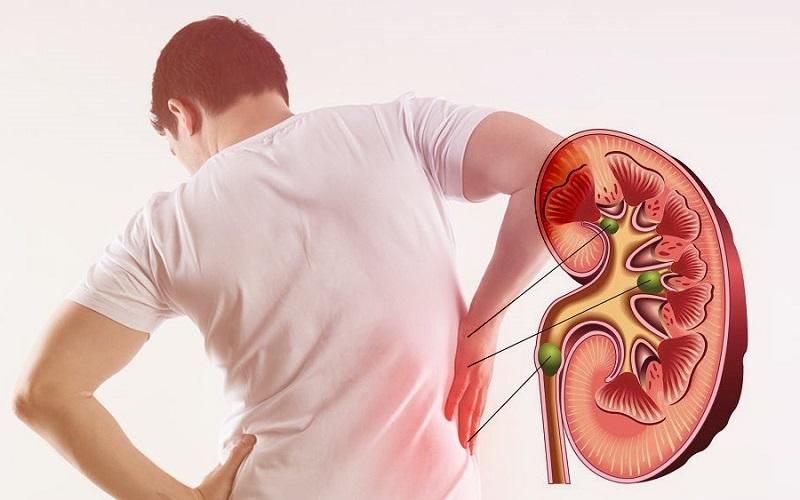 Những bệnh lý liên quan đến nước tiểu