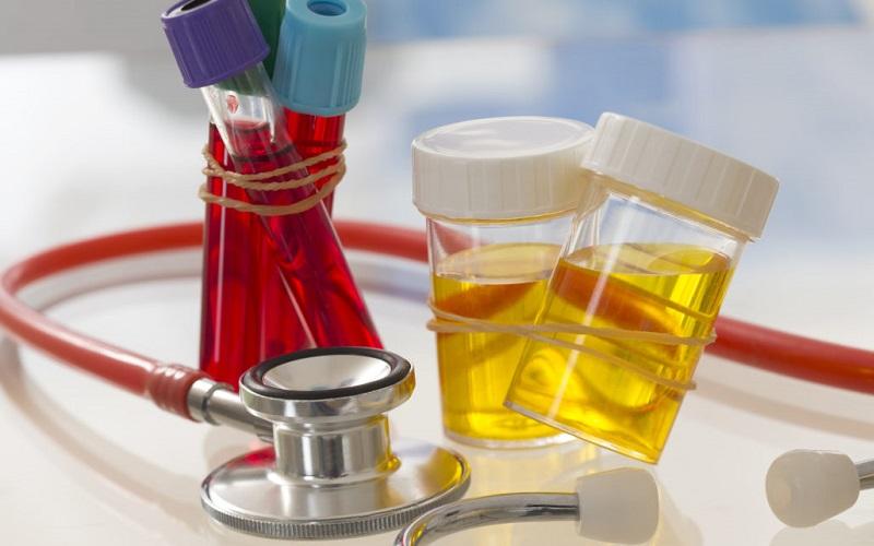 Cách lấy mẫu nước tiểu xét nghiệm nước tiểu ở Đà Lạt