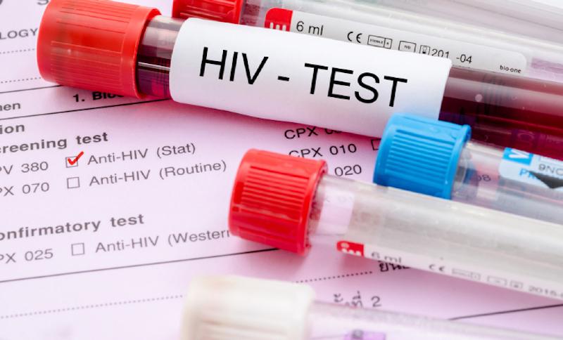 xet-nghiem-HIV