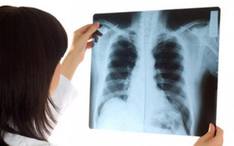 Tại sao cần chụp X - Quang phổi?
