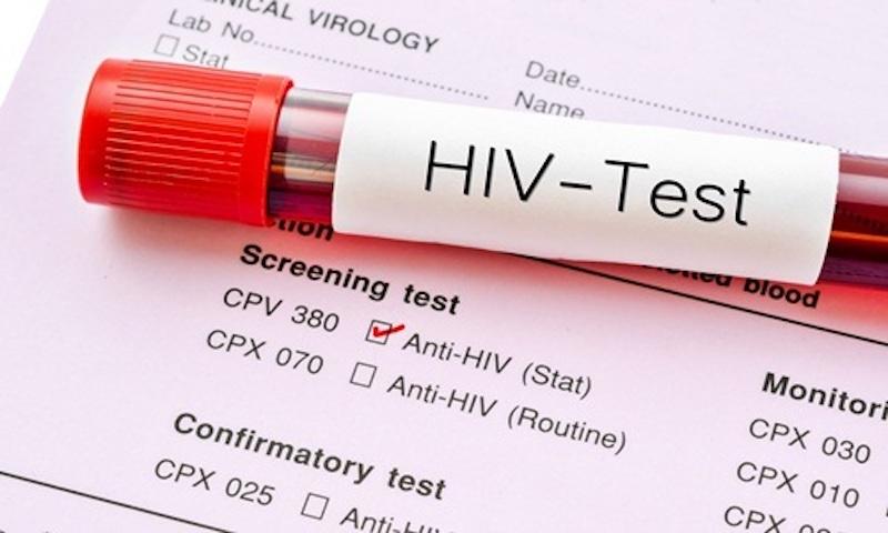 Phòng Khám Xét Nghiệm HIV Ở Bình Dương Tại Đâu Chính Xác?