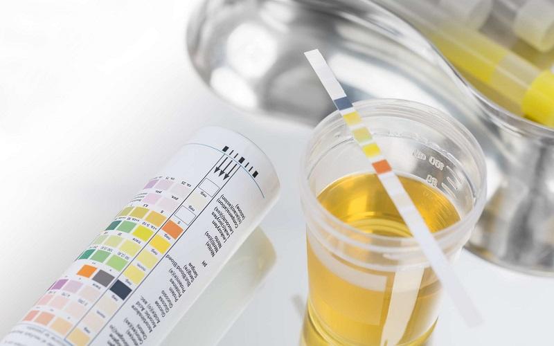 Xét nghiệm nước tiểu là gì?