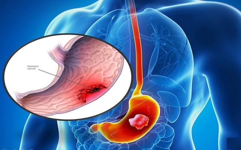 Xét nghiệm ung thư dạ dày là gì