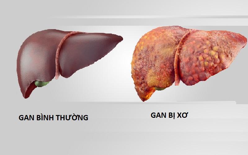 Nguyên nhân gây nên ung thư gan