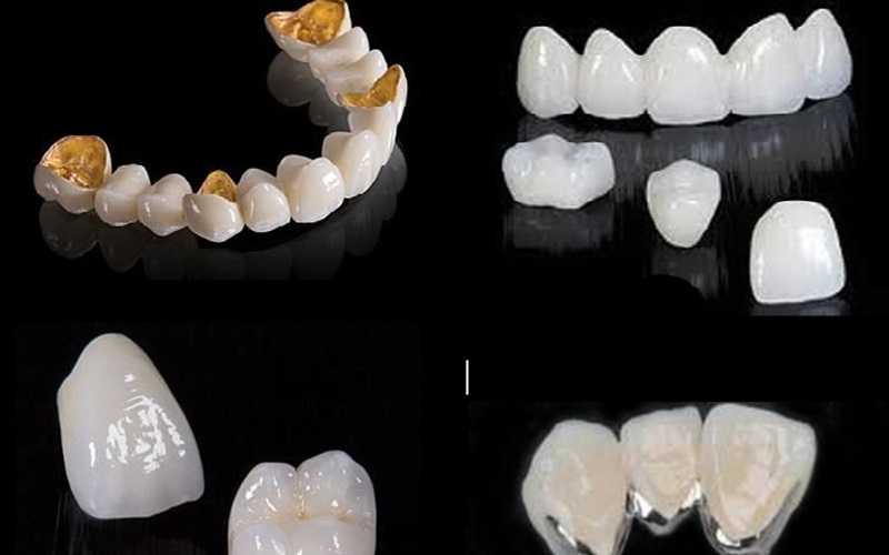 Các loại răng sứ được ưa chuộng hiện nay