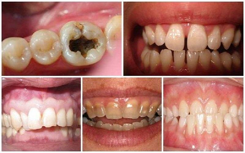 Các trường hợp nên bọc răng sứ ở Đà Lạt