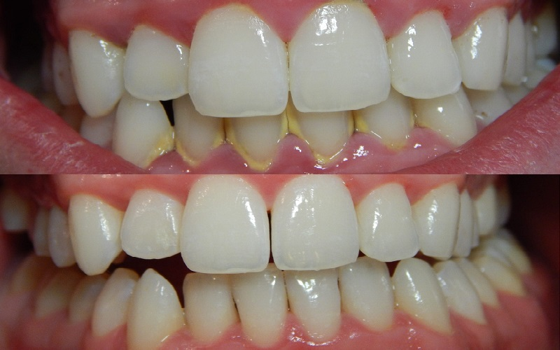 Lợi ích của việc lấy cao răng