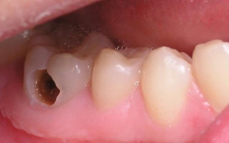Nguyên nhân gây ra sâu răng