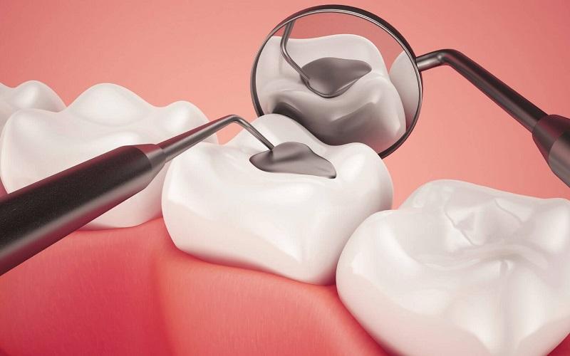 Hàn răng thẩm mỹ là gì?