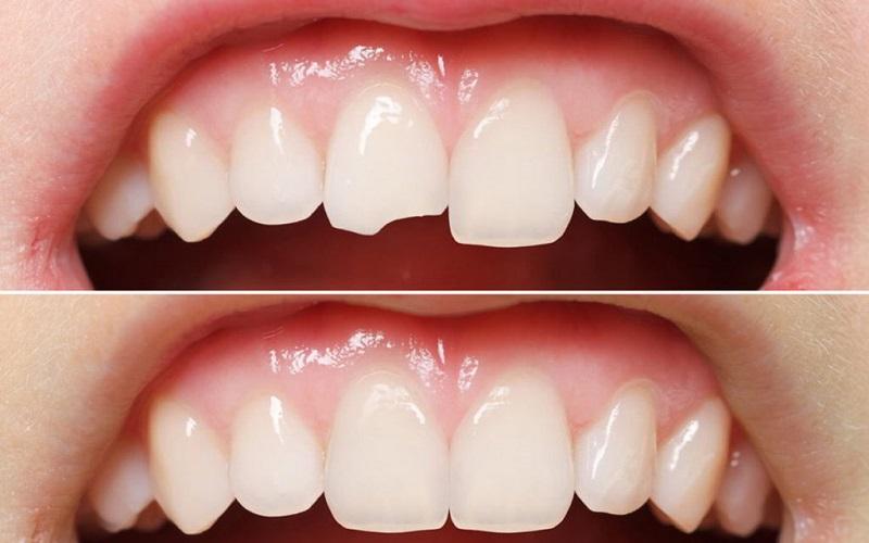 Ưu điểm của phương pháp hàn răng thẩm mỹ