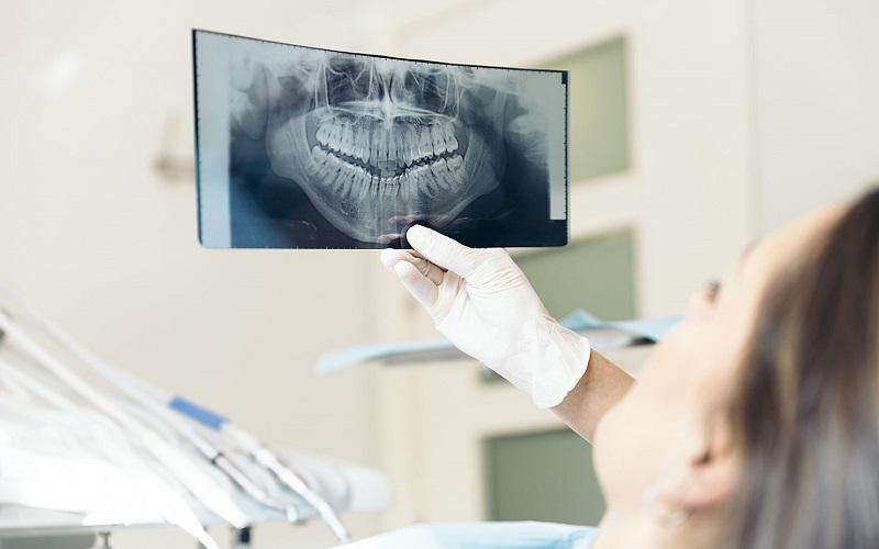 Trồng răng ở Đà Lạt