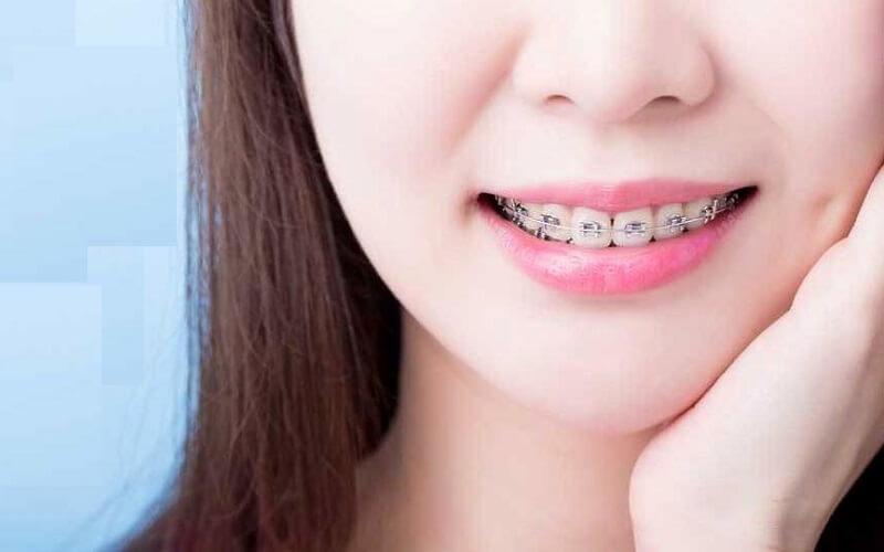 Niềng răng là gì?