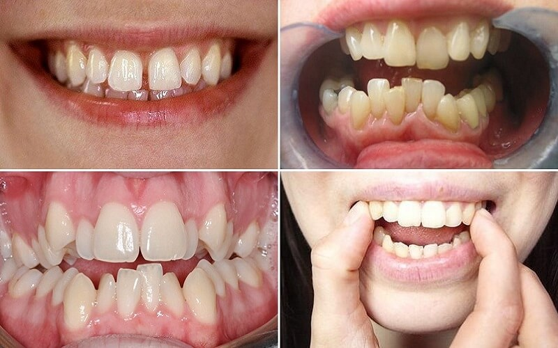 Đối tượng nên thực hiện niềng răng