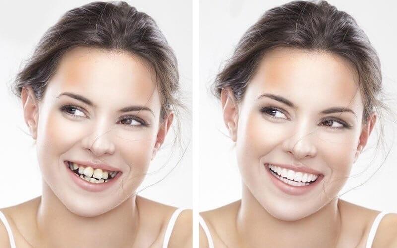 Niềng răng mất bao lâu?