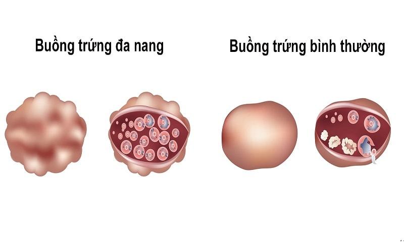 sieu-am-nang-noan