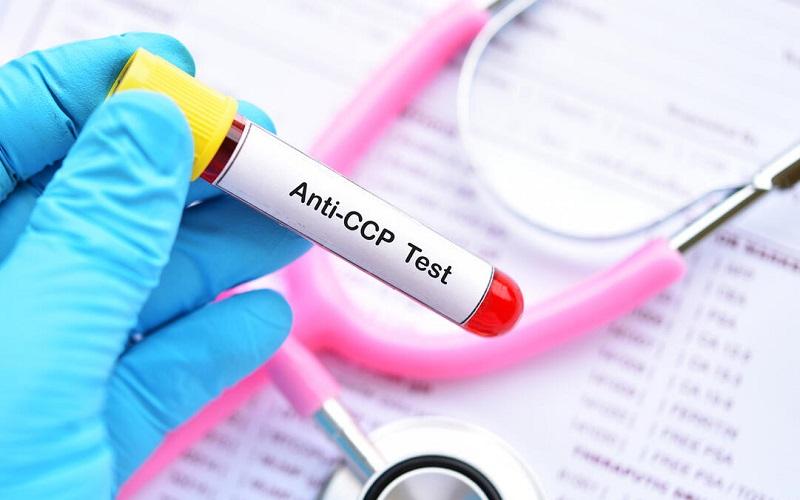 Xét nghiệm máu anti ccp