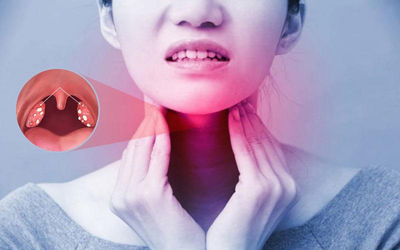 Viêm amidan là bệnh gì?