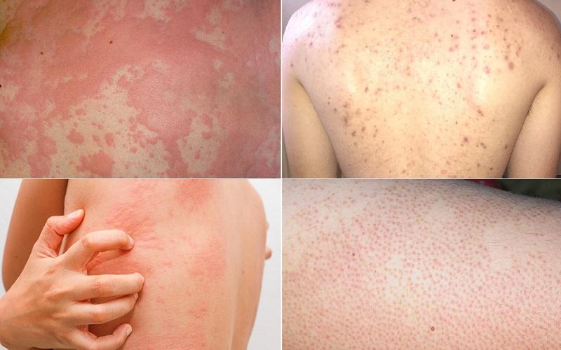 Tình trạng viêm nang lông lan rộng ra nhiều vùng khác nhau.