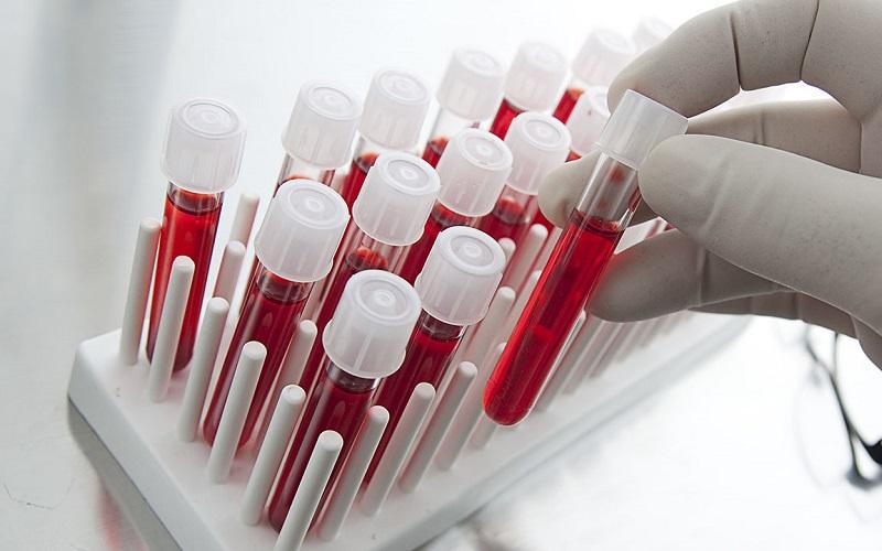 Xét nghiệm ung thư máu bao nhiêu tiền?