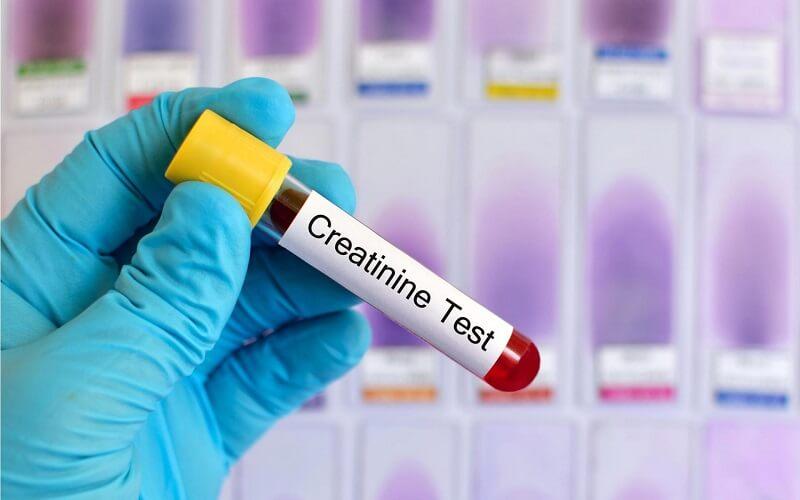 Xét nghiệm máu creatinin có ý nghĩa gì?