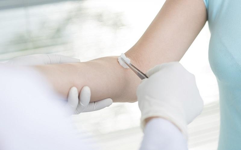 Xét nghiệm máu bệnh thủy đậu