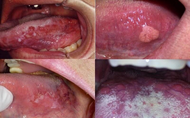 Các giai đoạn phát triển của ung thư lưỡi