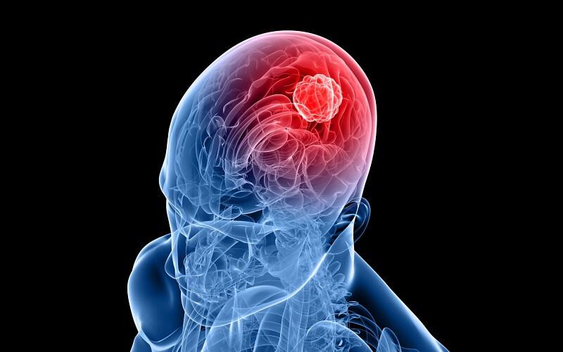 Nguyên nhân gây ung thư não