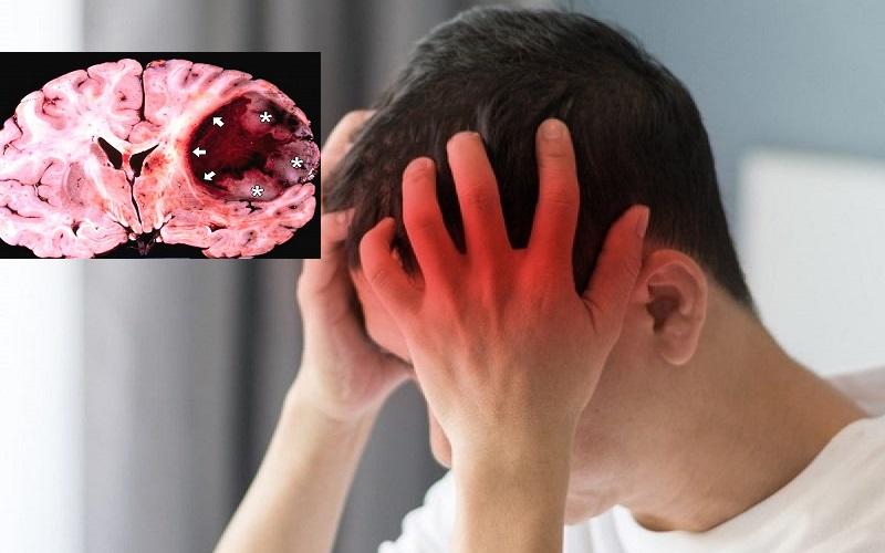 Các giai đoạn phát triển của ung thư não