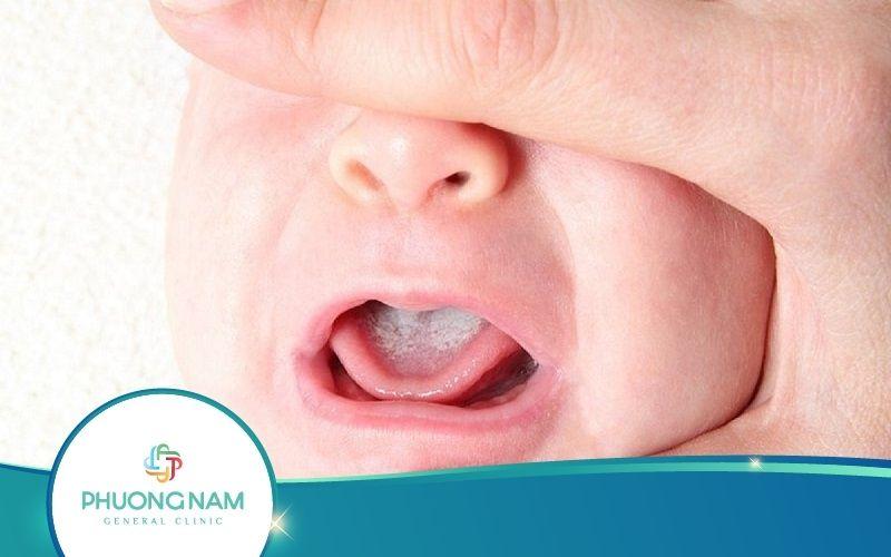 Bệnh Nấm Miệng Ở Trẻ Sơ Sinh Nguy Hiểm Không? Trị Thế Nào?