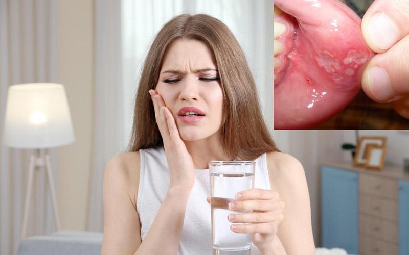 Dấu hiệu viêm loét miệng