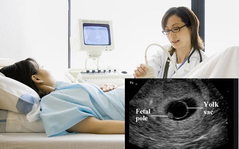 Ys trong siêu âm thai là gì -1
