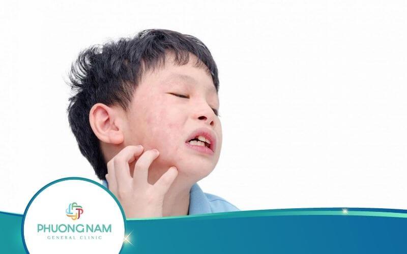 Bệnh Quai Bị Ở Trẻ Em Trai Nguy Hiểm Như Thế Nào?