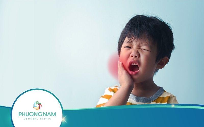 Hướng Dẫn Cách Chăm Sóc Trẻ Bị Quai Bị Để Nhanh Khỏi Bệnh