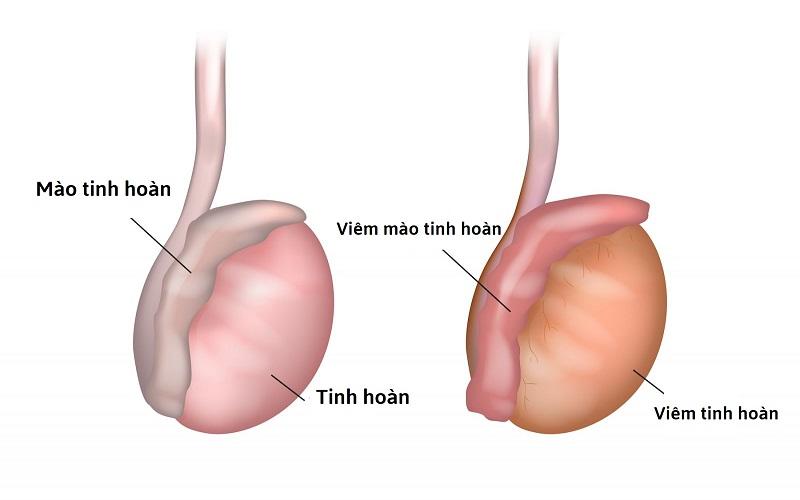 cham-soc-benh-nhan-quai-bi-7